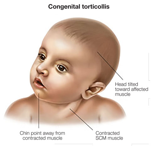 Image result for torticollis