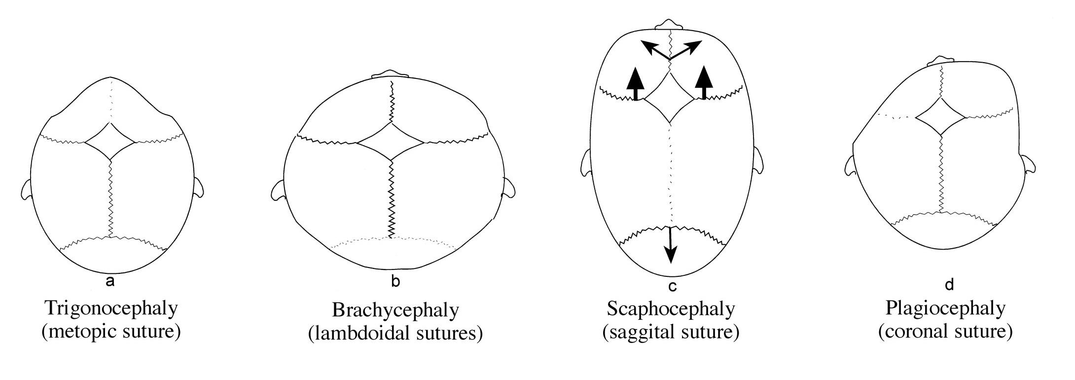 Types of Craniosynostosis